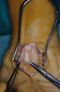 CARPAL TUNNEL OPERATION SHOWING VERY COMPRESSED NERVE